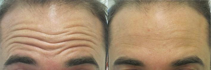 Botox Riduri Expresie