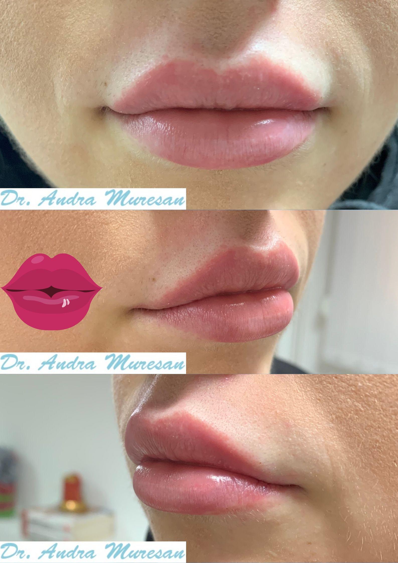 Marire Buze Cupid Bow Lips