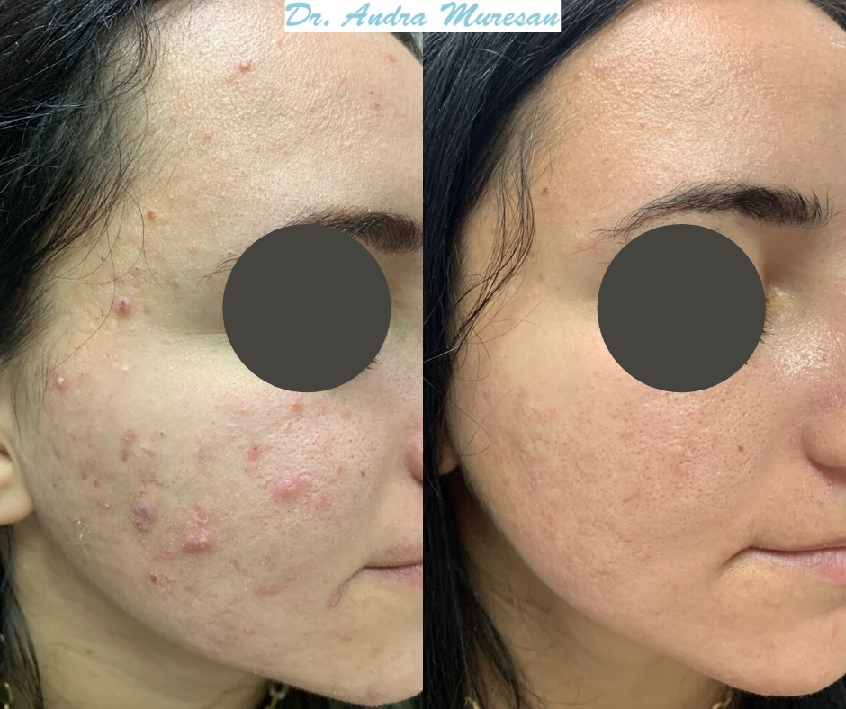 Dermatolog Acnee Timisoara